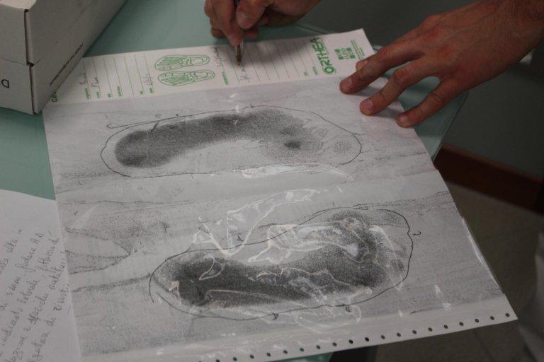 plantare- impronta podografica