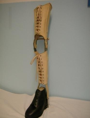 Protesi personalizzate