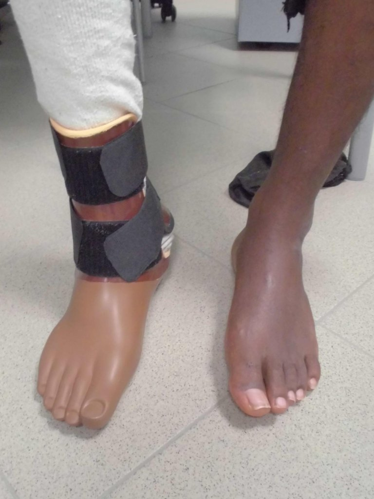 protesi piede