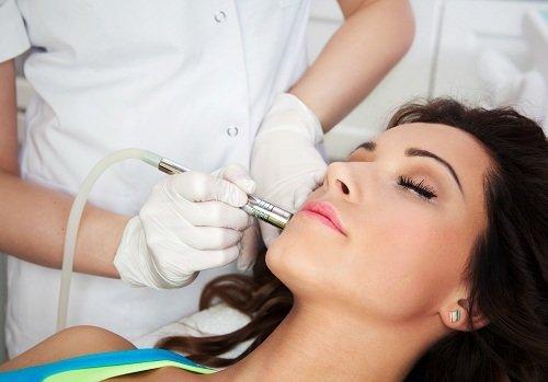 un mano che passa un dispositivo epilatorio sul viso di una donna