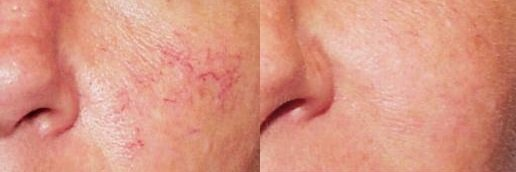 Picture of spider veins on face