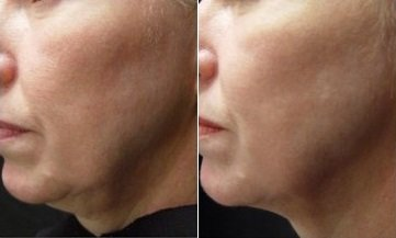 Skin Tightening On Jowls, neck and chin