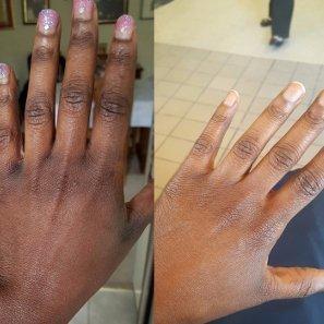Skin Lightening Picture