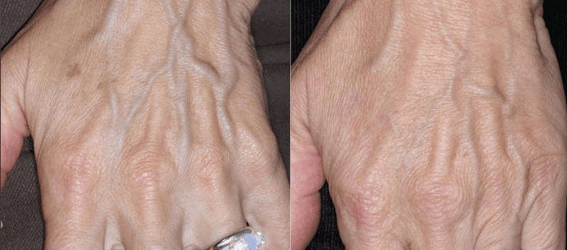 Dark Spots, Age Spots, Sun Spots, Hands, Arms