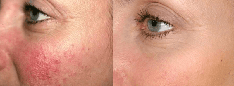 Redness, Rosacea, Broken Capillaries, Ruddy Cheeks, Diffuse Redness