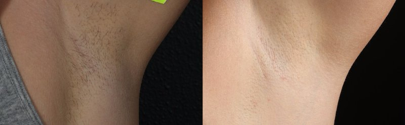 Safe, Painless Laser Hair Removal for Permanent Hair Reduction