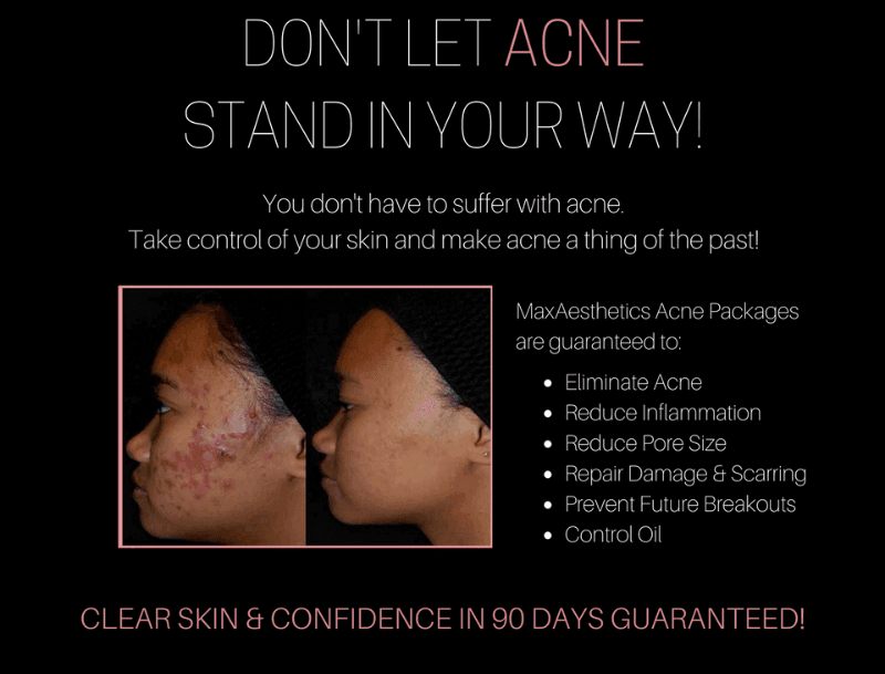 Acne skin care Packages to get rid of acne in 90 days or less