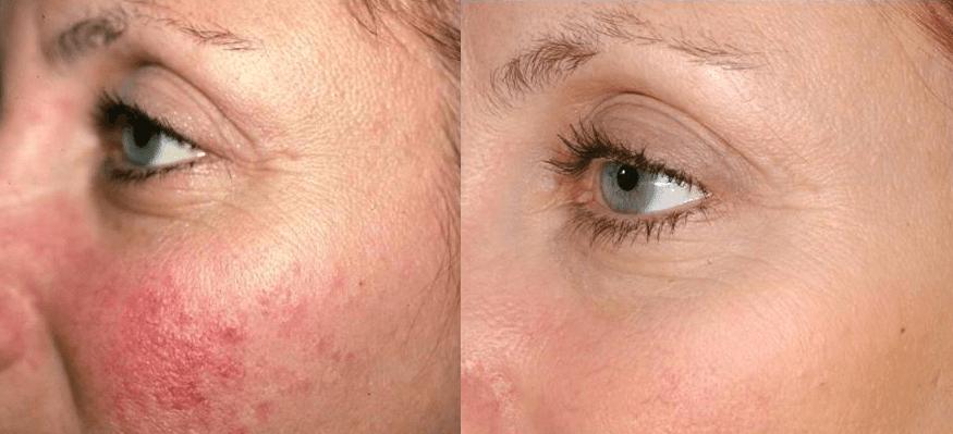 Laser genesis for rosacea