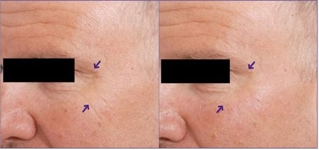 Skin Tightening For Crows feet and eyes
