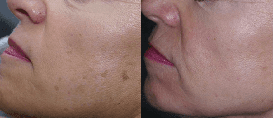 IPL, Dark Spots, Sun Damage, Refine, Pores, Texture