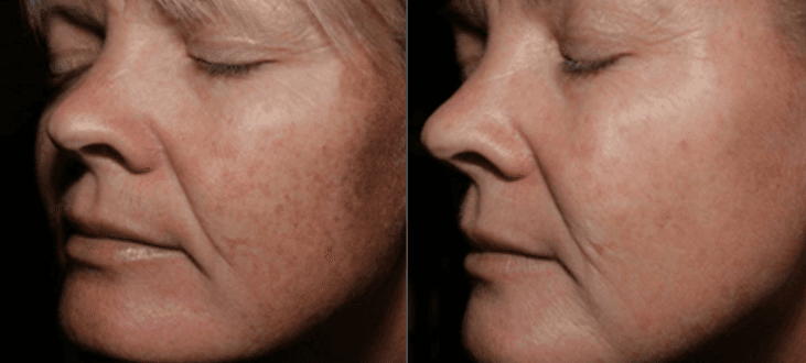 Freckles, Dark Spots, Beauty Marks, Sun Damage