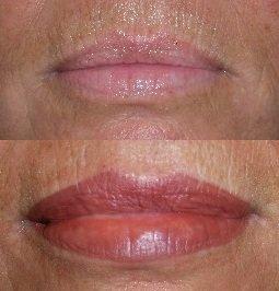 Permanent Lipstick, Fuller Lips