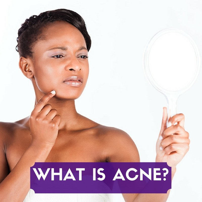 how to clear bad acne fast