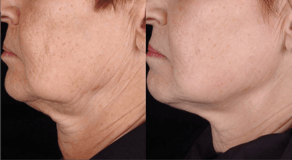 skin Tightening on  Jowls and Neck