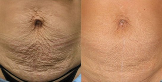 Skin Tightening On Loose Stomach Stretch Marks