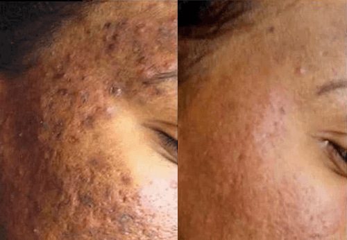 before and after Acne laser genesis ,