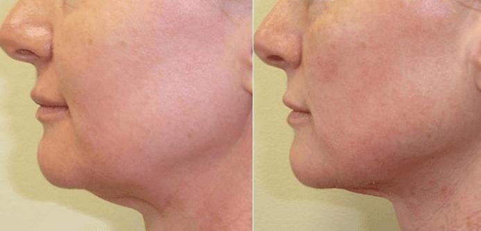 Skin tightening On Jaw Line, Jowls, Loose skin, sagging jowls