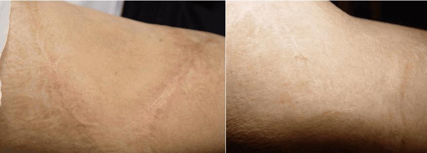 Burn Scars,