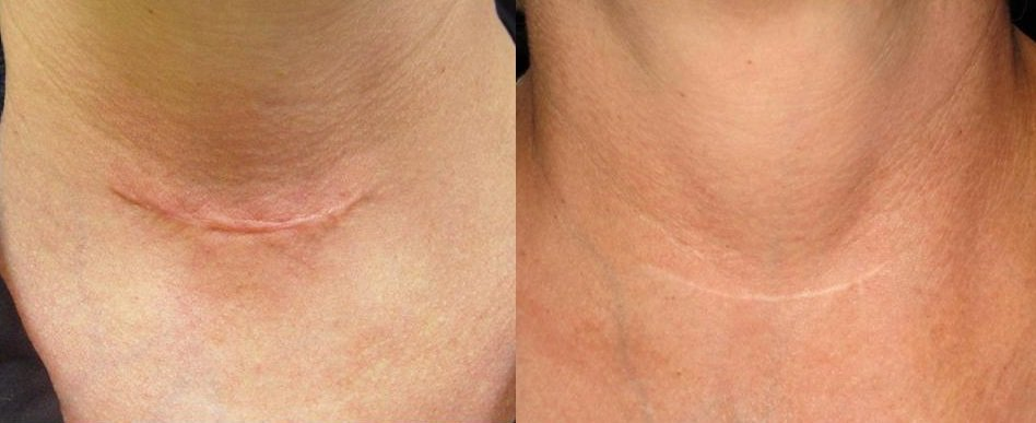 Combination therapy of Laser and Micro-needling to Heal Surgical Scars
