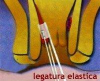 Legatura elastica