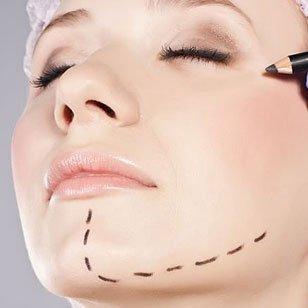 viso di una donna con  delle linee tratteggiate disegnate sul mento