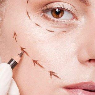 una mano di un chirurgo mentre disegna delle frecce sugli zigomi di una donna