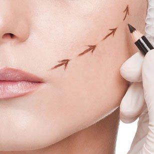 una mano di un chirurgo mentre disegna delle frecce sulle guance di una donna
