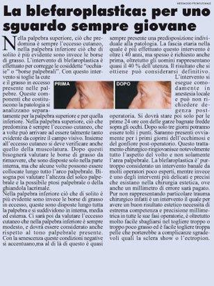 un articolo con il titolo La Blefaroplastica
