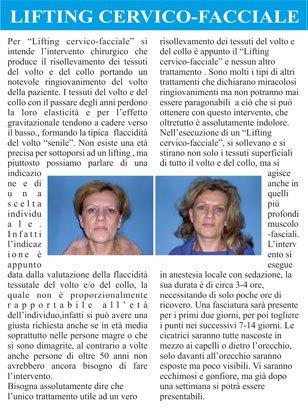 un articolo con il titolo Lifting Cervico - Facciale