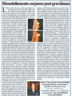 un articolo con il titolo Rimodellamento Corporeo post-gravidanza