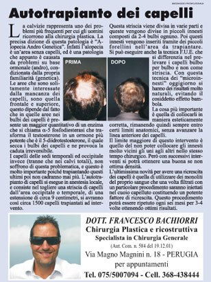 un articolo con il titolo Autotrapianto dei capelli