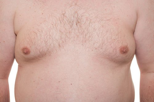 Torace maschile mostrando la fase iniziale Ginecomastia o boobs uomo è anche un sintomo di obesità