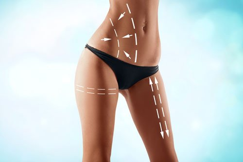 Misura il corpo femminile con le frecce di disegno. Chirurgia plastica, nutrizione sana, liposuzione