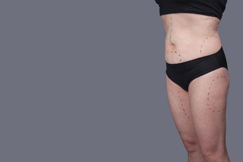 Donna grassa in biancheria intima. Donne del CORPO dopo il parto, marcature sulla liposuzione del corpo, donna in grasso in eccesso su sfondo grigio