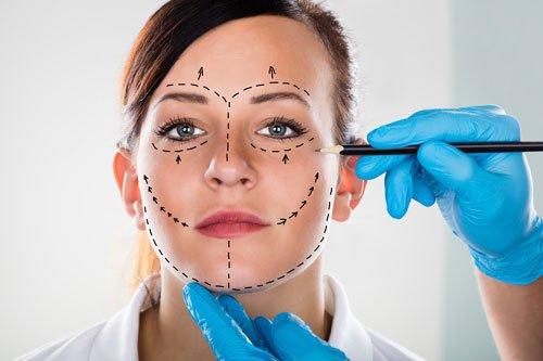 Marchio di tracciatura del chirurgo sul volto femminile