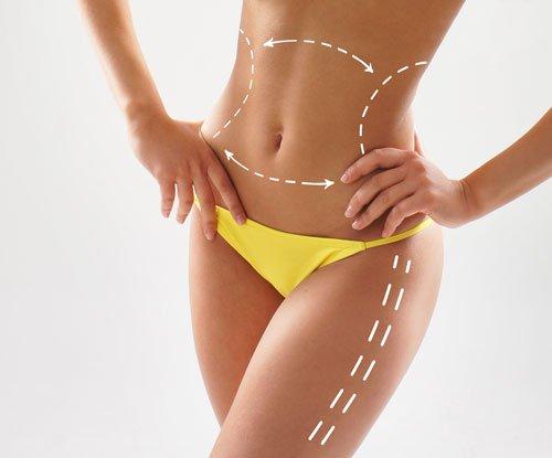 corpo di una donna con delle linee tratteggiate disegnate