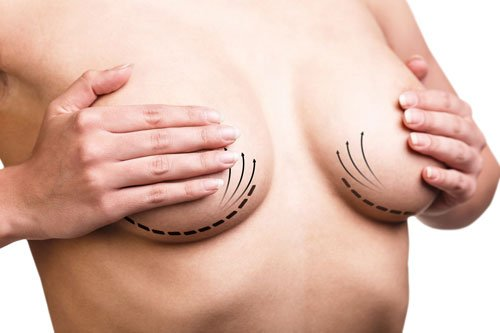 Breast correction. Plastic surgery