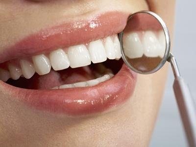 Dentisti carie