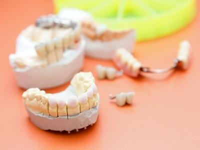 Protesi dentali rimovibili