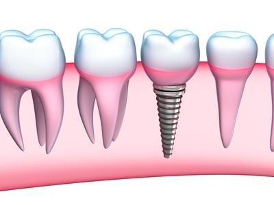 Dentista implantologia