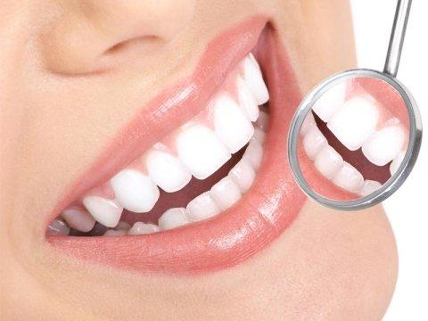 trattamenti di endodonzia
