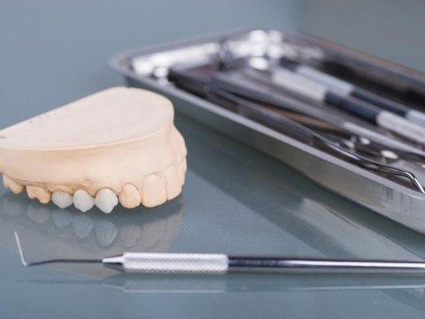implantologia Simonini DR. Bruno