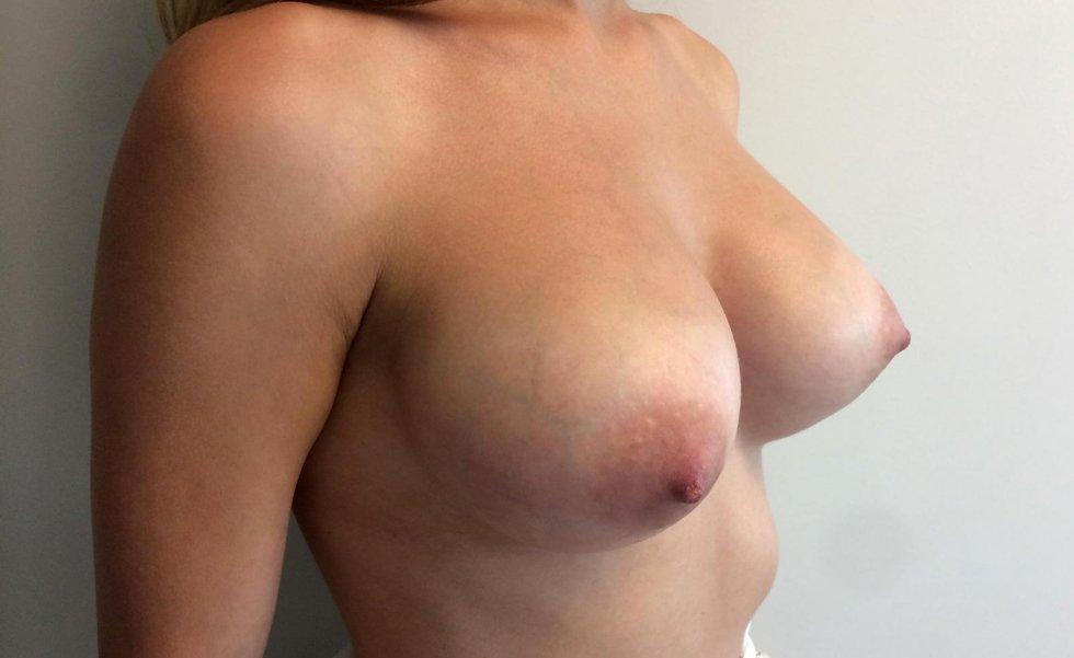 Aumento del seno