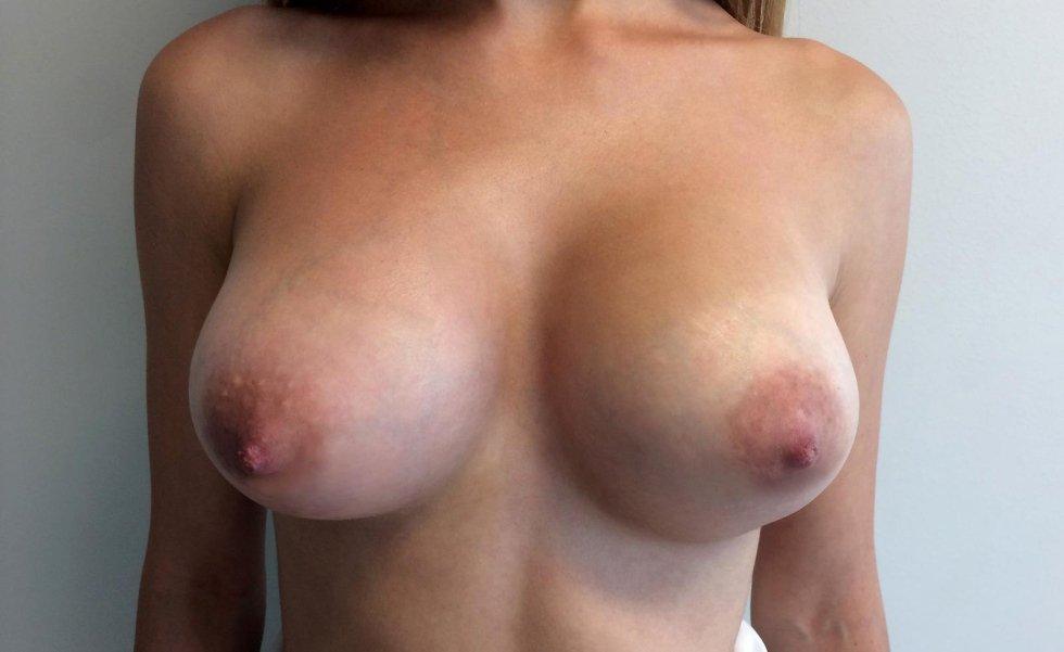 Ringiovanimento seno