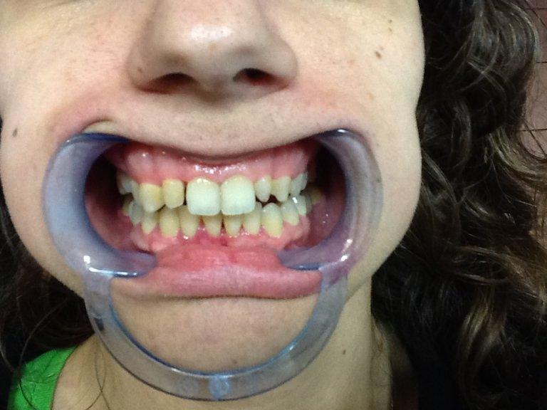 cura del dente