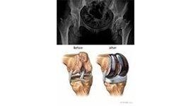protesi di anca e di ginocchio