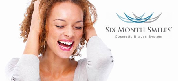 woman with six month smiles adult braces - fayetteville, nc - six month smiles