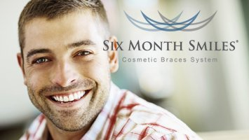 man with six month smiles clear braces - fayetteville, nc - six month smiles