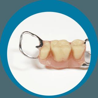protesi e impiantologia