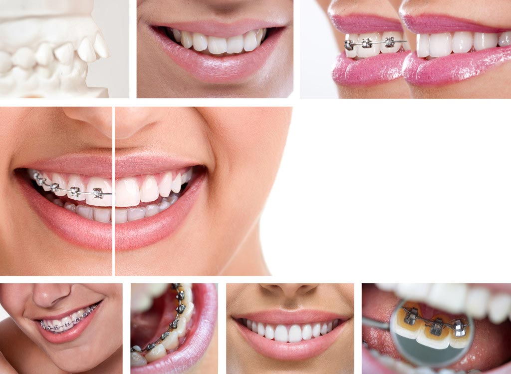 collage of braces treatment